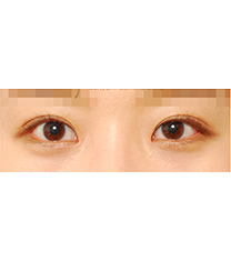 韩国世现整形外科全切双眼皮30天真人案例对比