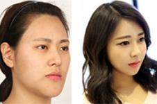 韩国改脸型哪家医院又好又安全?排名前三是谁?