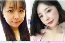 韩国ID轮廓眼鼻整形案例公开,术后模样能打几分?