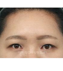 韩国Tailor整形外科内窥镜提升额头案例对比