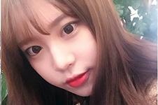 韩国一路美眼鼻综合整形效果如何?附加脂肪移植案例分析贴!