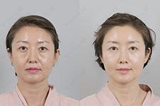 韩国江南有名的整形外科:这几家规模大收费贵 安全系数高