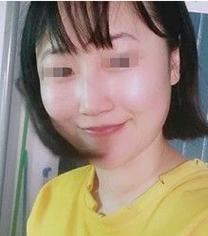 武汉至尚贝蓓整形医院玻尿酸丰苹果肌手术案例_术后