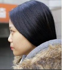 韩国able整形医院鼻部整形手术案例_术前