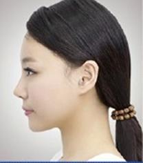韩国able整形医院鼻部整形手术案例_术后