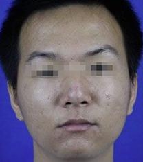 宁波韩美整形医院祛痘坑手术案例