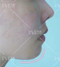 宁波韩美整形医院下巴整形手术案例