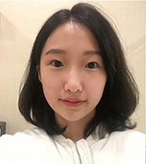韩国差异整形外科双眼皮真人整形日记,超大变化!