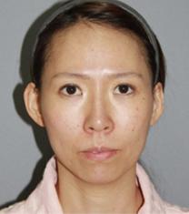 韩国able整形医院自体脂肪面部填充手术案例