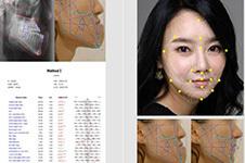 韩国江南有名的整形外科:做双鄂排名前几的医院必看!