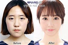 韩国江南有名的整形外科:受韩国人喜爱的非这几家莫属!