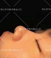 宁波韩美整形医院肋软骨隆鼻手术案例