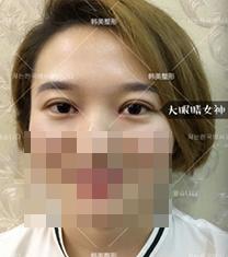 宁波韩美整形医院双眼皮手术对比案例