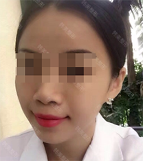 宁波韩美整形医院面部吸脂手术对比案例
