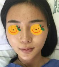 泰国Yanhee然禧国际医院颧骨内推手术真人案例