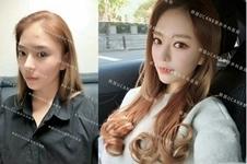 韩国ucanb整形医院,面部自体脂肪填充手术还你青春靓丽脸