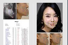 韩国牙颌畸形手术前后对比照曝光 韩国专业双鄂医院支招!