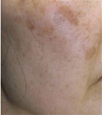 韩国cellpia干细胞医院黄褐斑案例对比