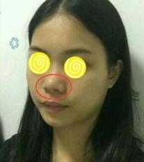 广州美贝尔鼻综合整形前后对比照片_术前