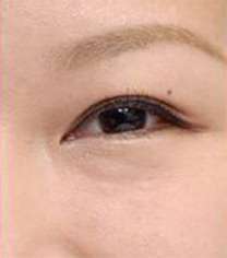 张家界瑞美整形医院祛眼袋手术对比案例