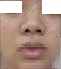 张家界瑞美整形医院硅胶隆鼻手术对比案例