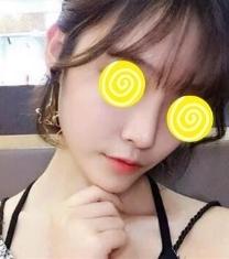哈尔滨韩美医疗美容鼻综合整形前后对比照片
