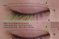 心元鼻眼整形在哪里,手术做的怎么样【3分钟看懂】