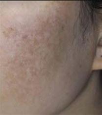韩国cellpia整形干细胞医院祛斑案例
