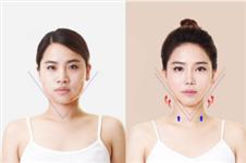什么是下颌角整形,韩国和国内手术区别有哪些?