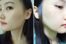 这三家韩国医院下颌角整形案例特色出众!点开看大图!