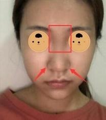 福州美贝尔鼻综合整形前后对比照片_术前