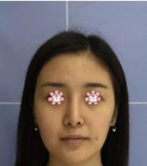 宁夏华美整形医院面部提升手术真人对比案例