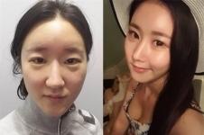 韩国加美整形医院好吗,有没有失败案例在韩国排第几?