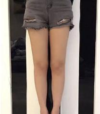 宁夏华美整形医院腿部吸脂手术案例