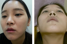 韩国医院做下巴整形术后60天恢复过程!