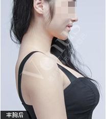 武汉维纳斯整形医院假体隆胸手术对比案例