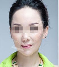 武汉维纳斯整形医院面部抗衰老整形手术案例