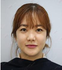 釜山银河系整形外科假体丰苹果肌案例对比