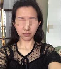 兰州亚韩整形医院自体脂肪面部填充手术案例
