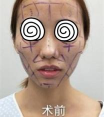 长沙协雅医疗美容医院面部填充手术前后照片_术前