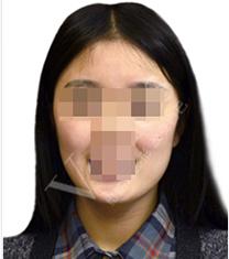 武汉维纳斯整形医院面部轮廓手术对比案例