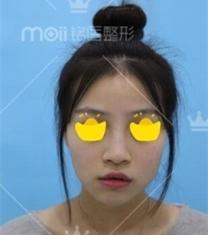 深圳铭医医疗美容鼻综合整形前后对比照片_术前