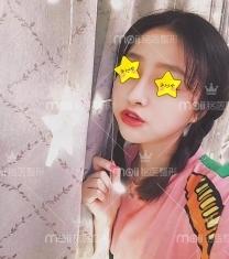 深圳铭医医疗美容鼻综合整形前后对比照片_术后