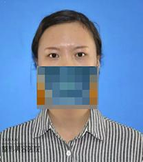 兰州亚韩整形医院眼部手术对比案例