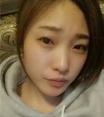 韩国snow整形外科眼鼻综合手术日记_术前