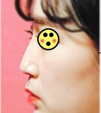 韩国Baroko整形外科隆鼻手术前后对比图_术前