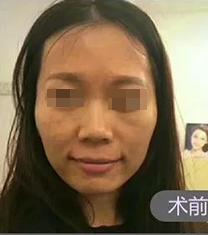 济宁名美整形医院自体脂肪面部填充手术案例