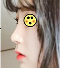 韩国Baroko整形外科隆鼻手术前后对比图_术后