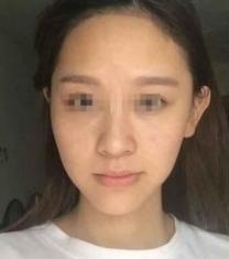 北京佳妍医疗美容医院皮肤护理前后对比照片_术前