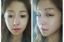 韓國博朗溫醫院官網隆鼻案例曝光,10天恢復照原來長這樣!